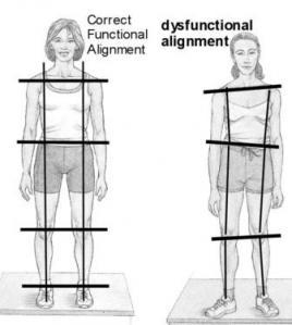 good-vs-bad-posture