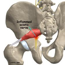 Pic of inflamed sciatic nerve due to piriformis impingement