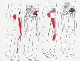 Trigger point referral patterns down leg due to dysfunction in the hip muscles.