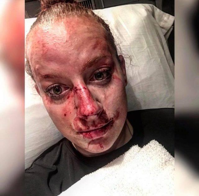 Officer Kristen Richmond Shares Desperate Fight For Her Life