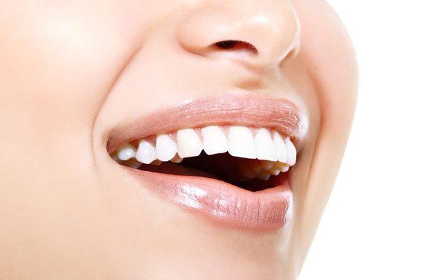 وصفات تبييض الأسنان: 5 خلطات طبيعية من مكونات مطبخك