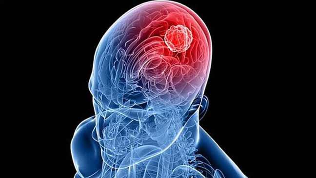 طريقة في متناول الجميع للوقاية من سرطان الدماغ