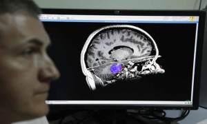 علماء يبتكرون حاملا اصطناعيا للعقل البشري الطبيعي
