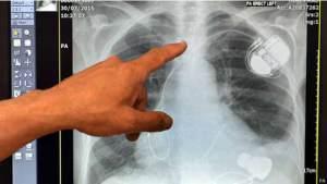 """مضخة قلبية صغيرة """"قد تغير حياة آلاف المرضى"""""""
