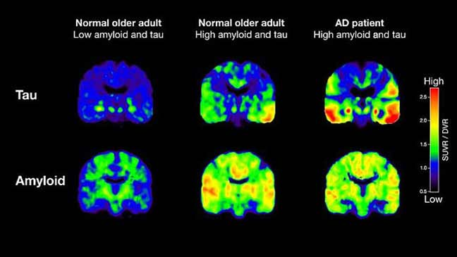 اختبار يمكن أن يكشف خطر الإصابة بمرض الزهايمر