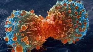 اربع مهن تحفز الأورام السرطانية