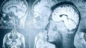 العلماء يؤكدون وجود صلة بين اضطرابات النوم والذاكرة