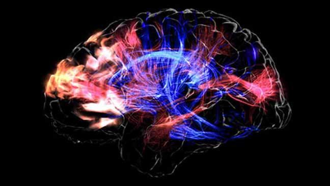 علماء يحاولون إحياء المخ الميت