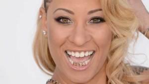 أسنان الذهب تسبب أمراض اللثة