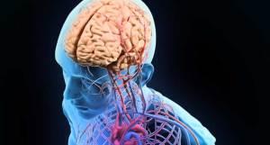 90% من حالات الإصابة بسكتة الدماغ يمكن تجنبها