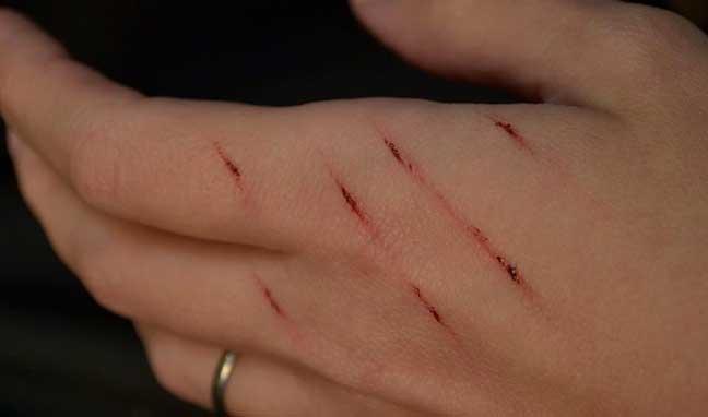 كيف تتخلص من علامات الجروح القديمة