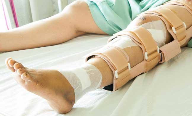 معالجة العظام