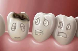 نصيحة بسيطة لحماية أسنانك من التسوس