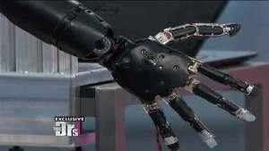 ذراع اصطناعية يمكنها الحركة والشعور واللمس