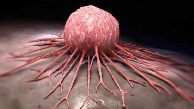 دراسة: السرطان سيزيد وفيات النساء في العقدين القادمين