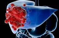 ريجورافينيب أول عقّار ناجع لعلاج سرطان الكبد المتقدم