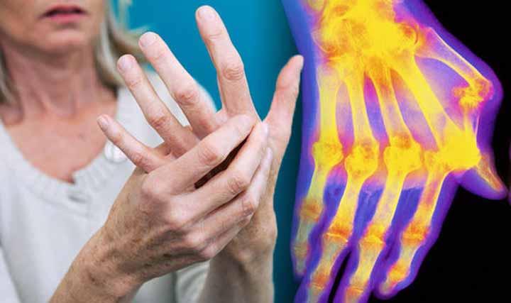 التهابات المفاصل أنواعها وأسبابها