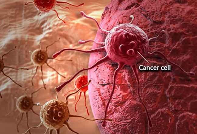 اكتشاف طريقة للوقاية من أحد أكثر أنواع السرطان انتشارا