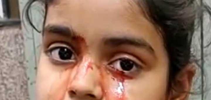 فتاة تذرف دما بدل الدموع في حالة طبية محيرة تربك الأطباء