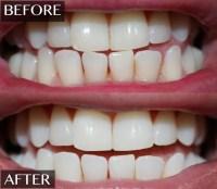 Whitening Lightning Teeth whitening products - Black ...