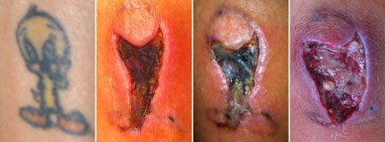tattoo removal with IPL