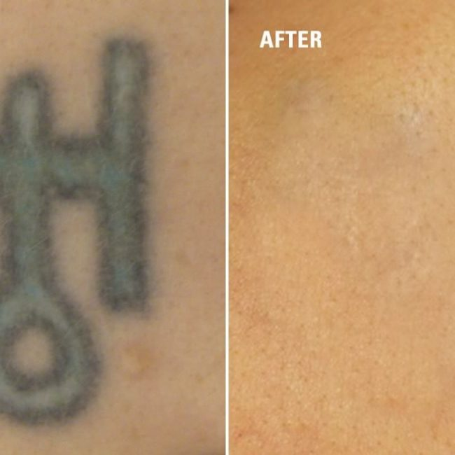 Tattoo Removal Before And After How To Get Rid Of Tattoo Ideas And Designs