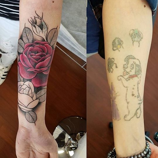 Laser Tattoo Removal Clinic Hallett Cove The Tattoo Ideas And Designs