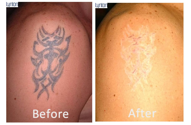 Laser Tattoo Removal Blackpool The Fylde Clinic Ideas And Designs