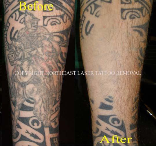 Pictures For Northeast Tattoo Laser Tattoo Removal In Ideas And Designs