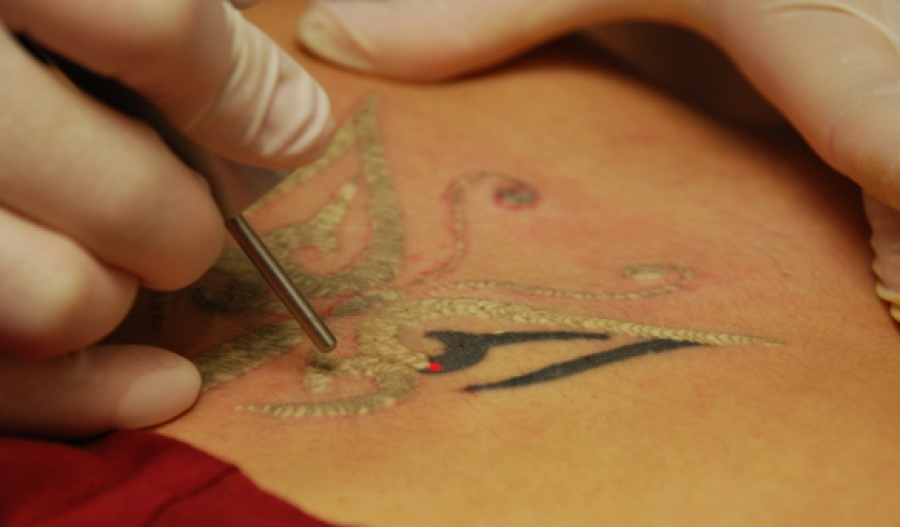 Tattoo Removal 101 Anokhi Media Ideas And Designs