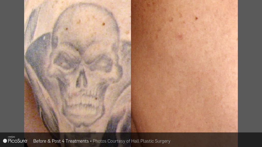 Picosure Tattoo Removal L Smersworth Nh L Pinewood Laser Ideas And Designs
