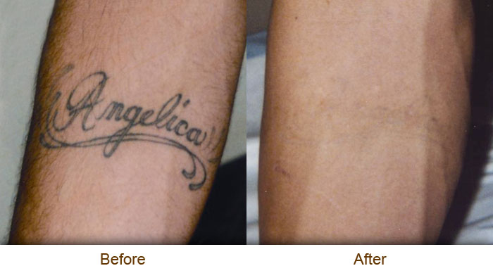Tattoos Removal The Best Way N1Achraf Ideas And Designs