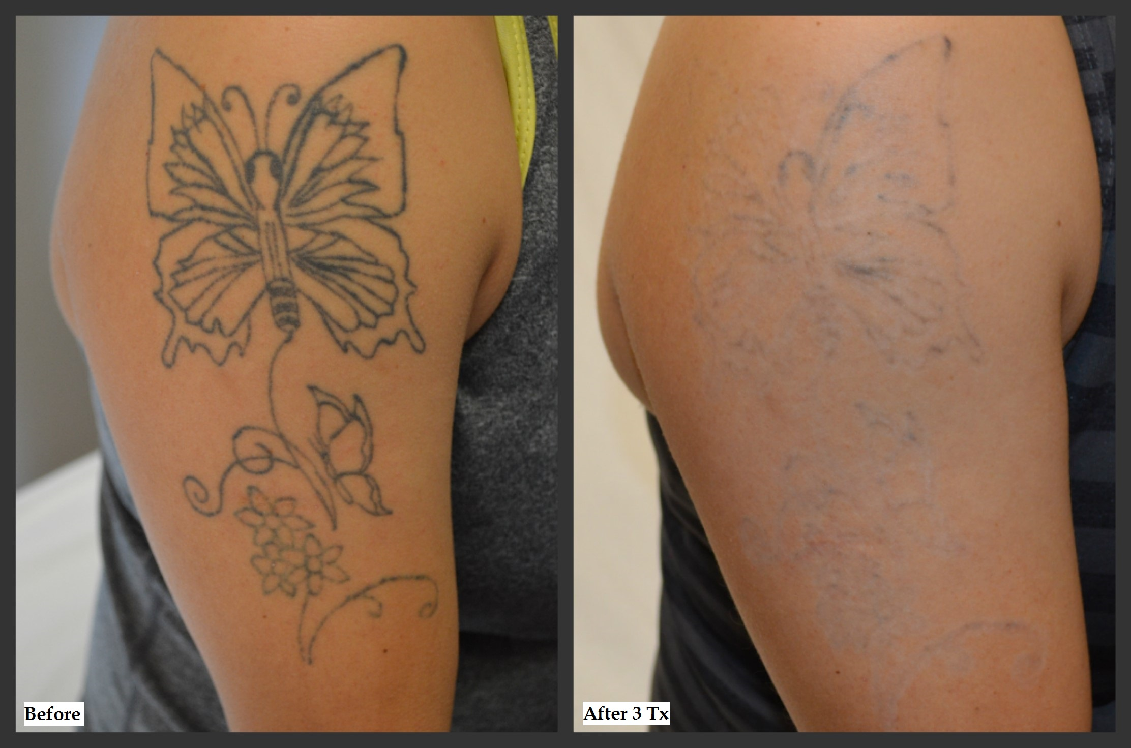 Before And After Photos Millefiori Ideas And Designs