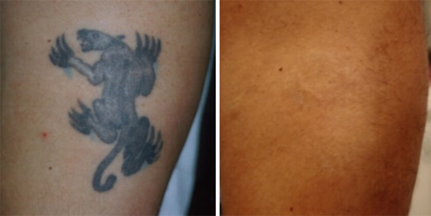 100 Tattoo Temoval Before And After Laser Tattoo Ideas And Designs