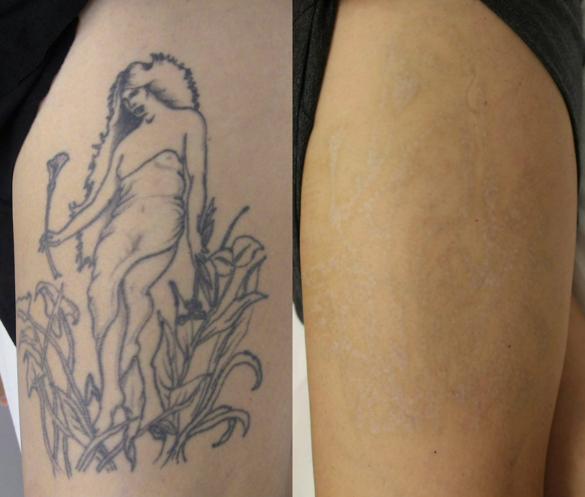 Zapn Ink Expert Laser Tattoo Removal Ideas And Designs