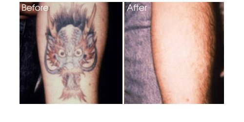 Physicians Laser Center Laser Tattoo Removal Ideas And Designs