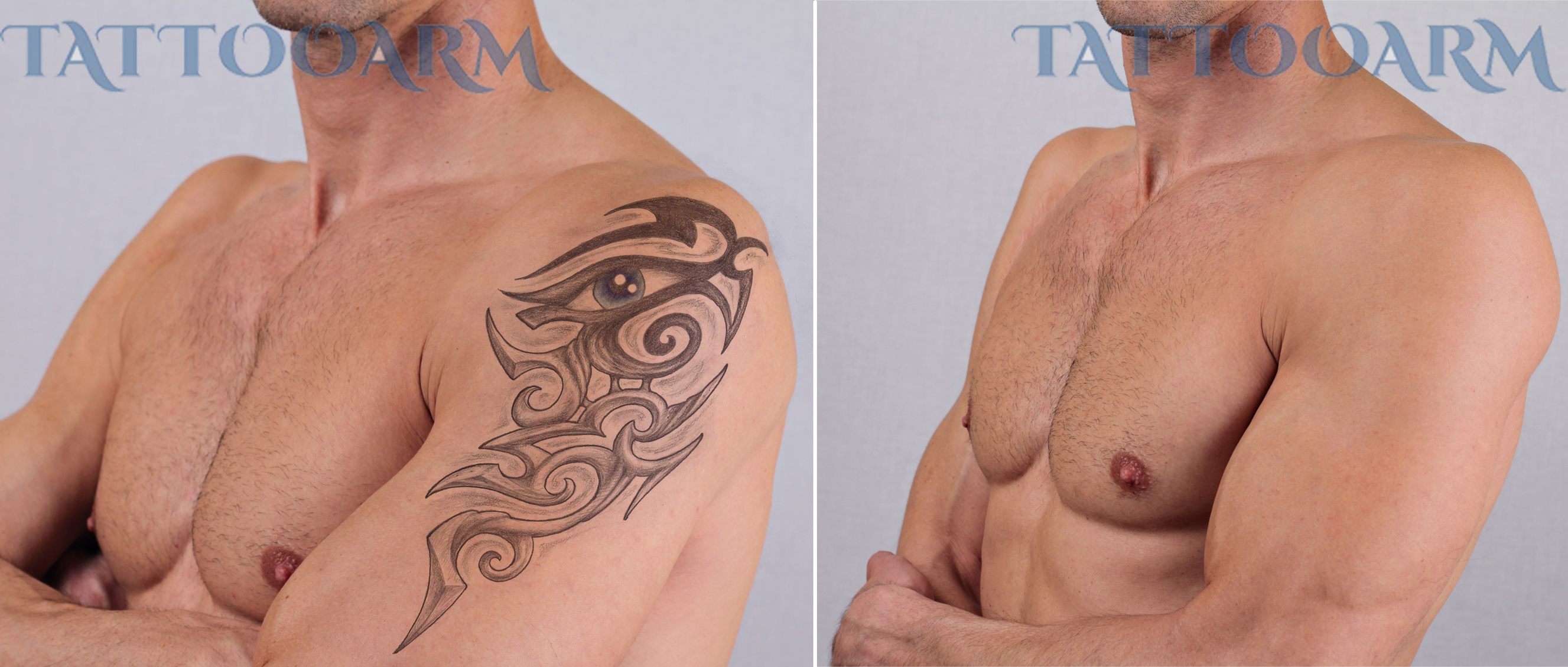 Home Tattoo Removal Natural Tattoo Removal Methods Ideas And Designs