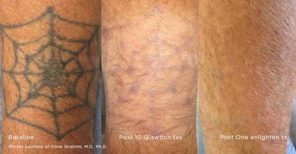 Tattoo Removal Pigment Correction Enlighten Laser Ideas And Designs