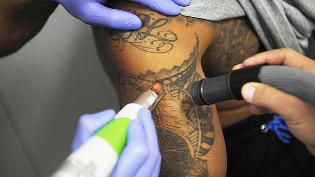 Laser Tattoo Removal On The Rise As Stats Say One In Three Ideas And Designs