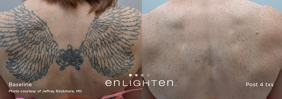 Laser Tattoo Removal Post Care Tips Ideas And Designs