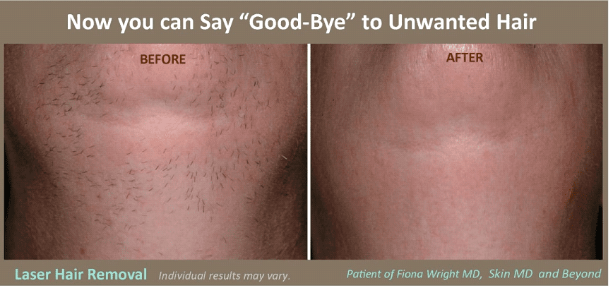 Laser Hair Removal Cosmetic Skin Care Specialist Plano Tx Ideas And Designs