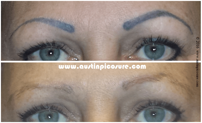Eyebrow Permanent Makeup Easily Removed Via Picosure Laser Ideas And Designs