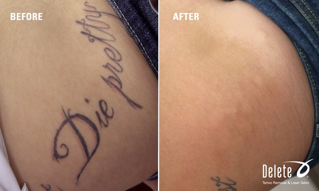 Picoway Tattoo Removal In Phoenix Fast Tattoo Removal Ideas And Designs