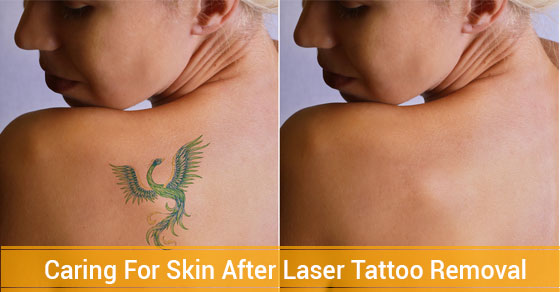 5 Tips On How To Care For Skin After Laser Tattoo Removal Ideas And Designs