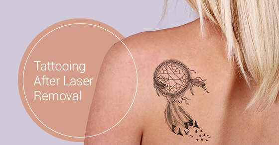 After Laser Tattoo Removal Can You Get A New Tattoo Ideas And Designs