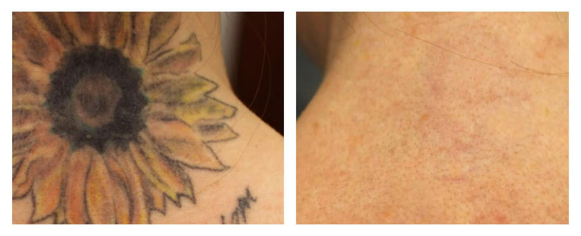 Laser Tattoo Removal Ottawa Advanced Laser Clinic Ideas And Designs