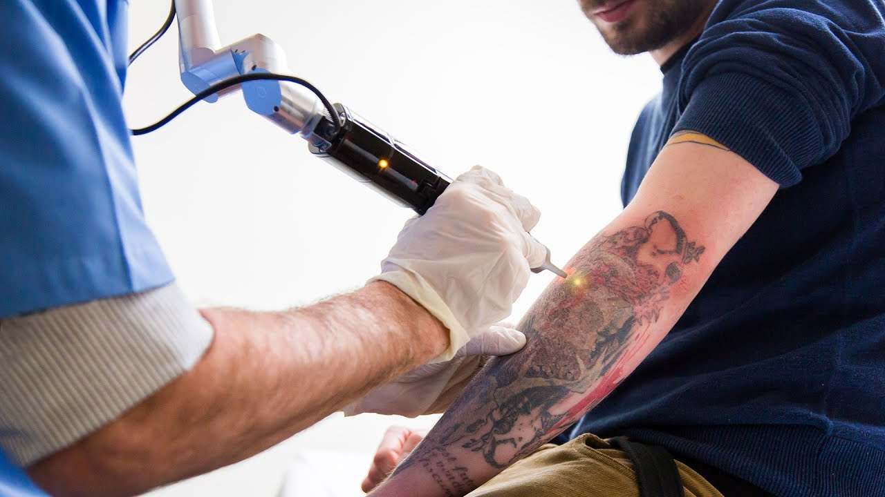 How To Safely Get A Tattoo Removed Ideas And Designs