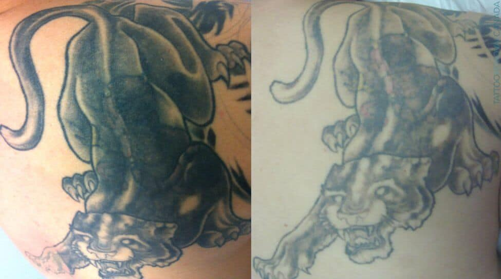 Laser Tattoo Removal Aftercare Remedies Managing Side Ideas And Designs