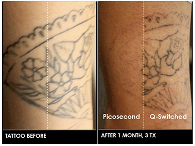 Picosure™ Laser Tattoo Removal David H Mcdaniel Md Ideas And Designs