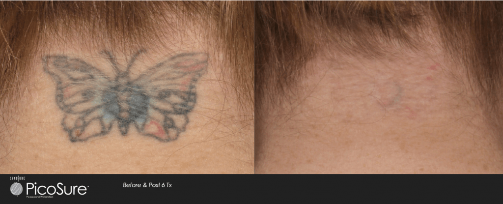 Does Tattoo Removal Hurt Laser Aesthetic Center Ideas And Designs